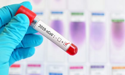 Coronavirus Piemonte, il paziente uno è di nuovo positivo